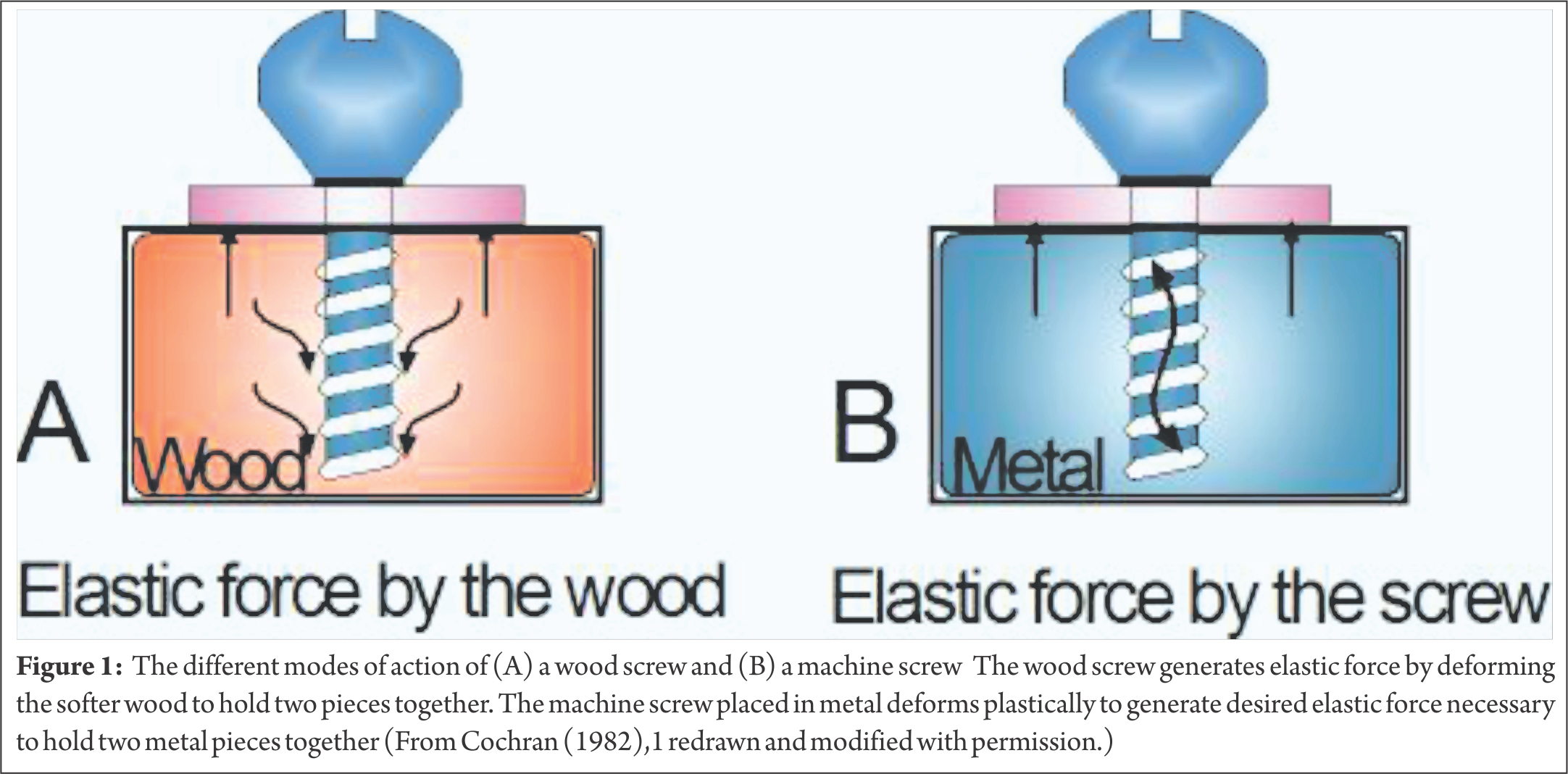 Shears clipart thread. Biomechanics of cancellous screw