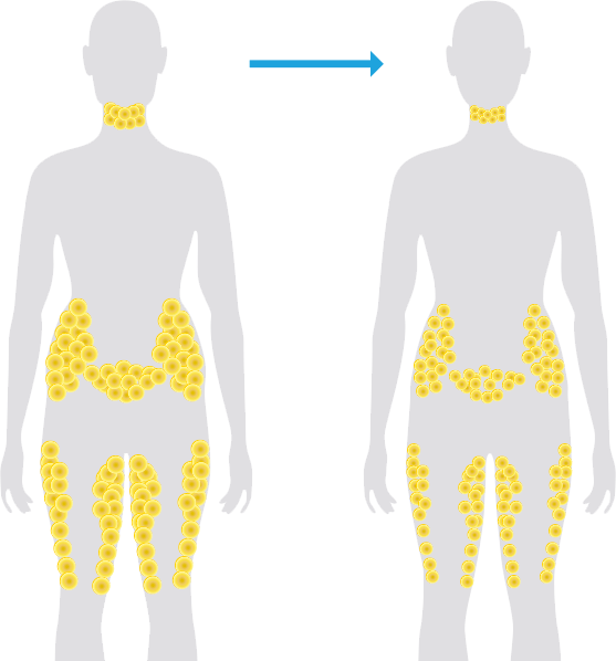 Neck clipart body back. Fat freezing vs weight