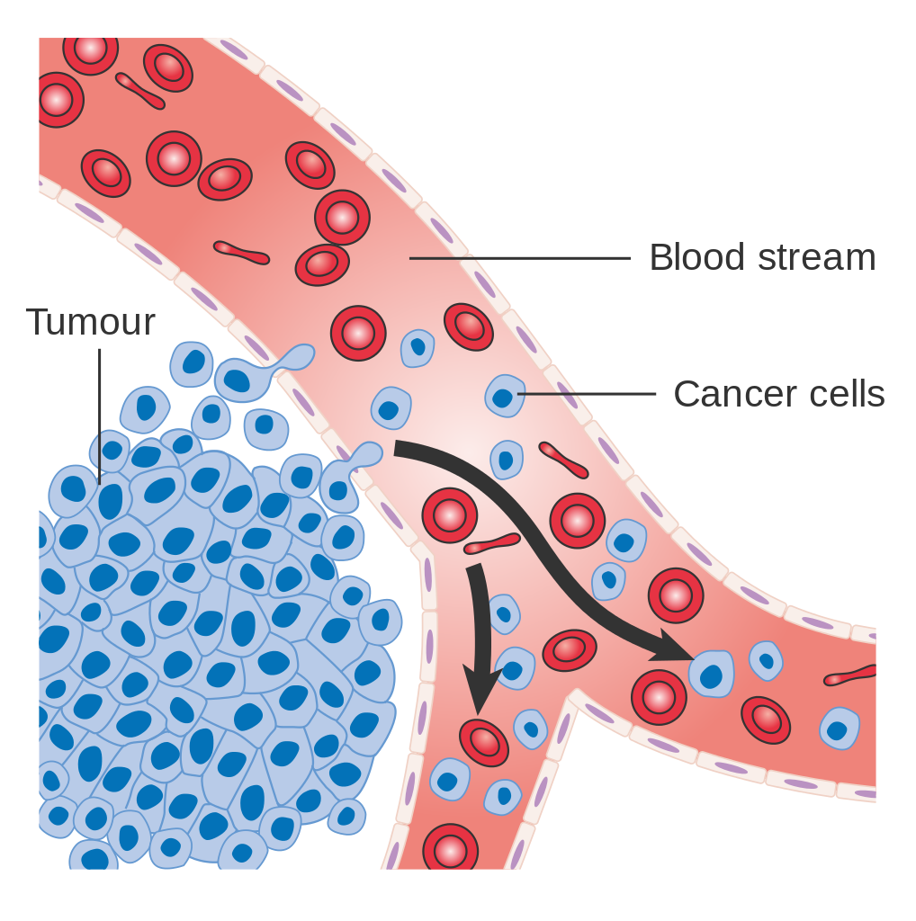 Needle clipart biopsy. Mgus diagnosis i want