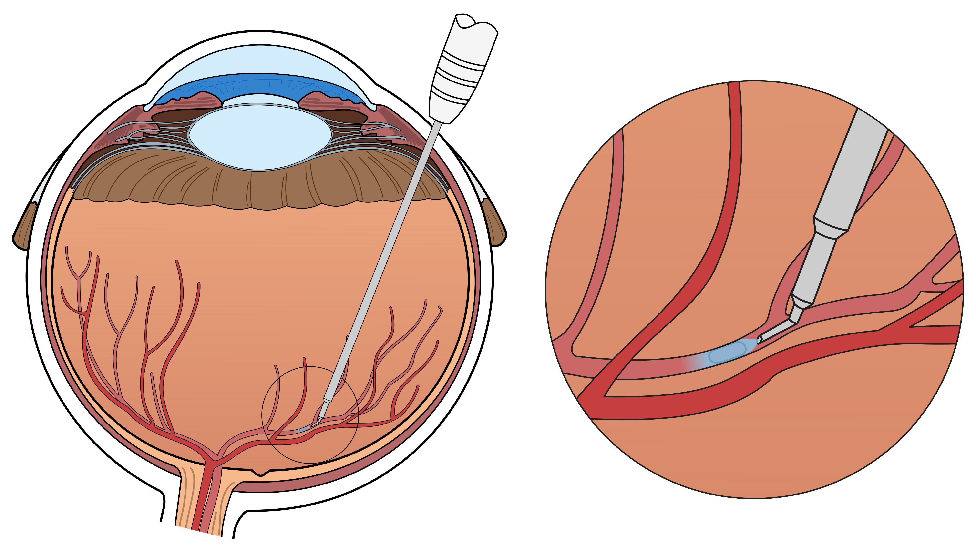Surgical eye robot performs. Psychology clipart brain surgeon