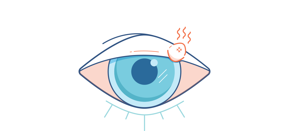 Vision clipart healthy eye. Styes causes symptoms and