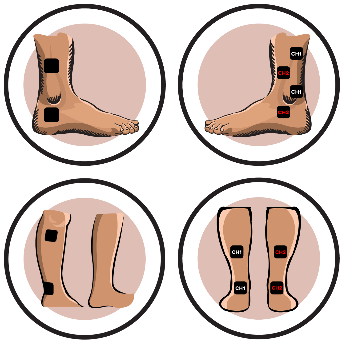 Ireliev electrode pad placement. Pain clipart ankle injury
