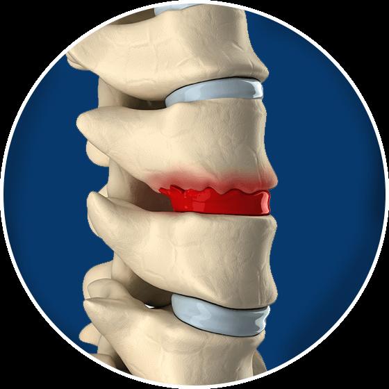 Pain clipart knee pain. Bone spurs symptoms advanced