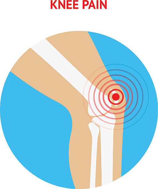 Station . Pain clipart knee pain