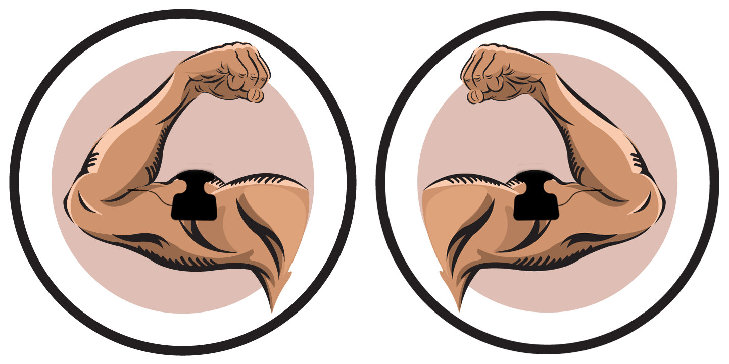 Pain clipart muscle spasm. Biceps ireliev