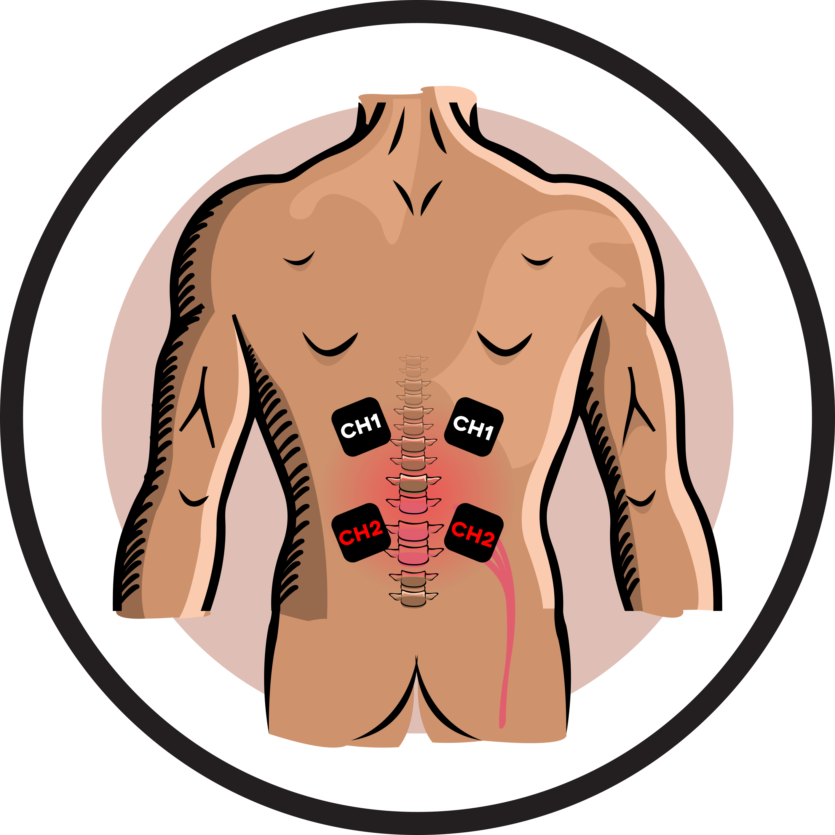 Ireliev slipped disk electrode. Pain clipart muscle spasm