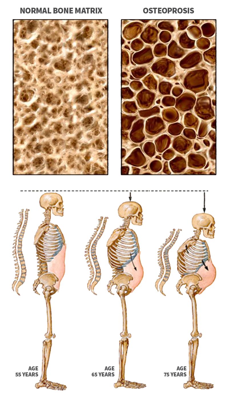 Pain clipart tenderness. Osteoporosis endocrinology of central