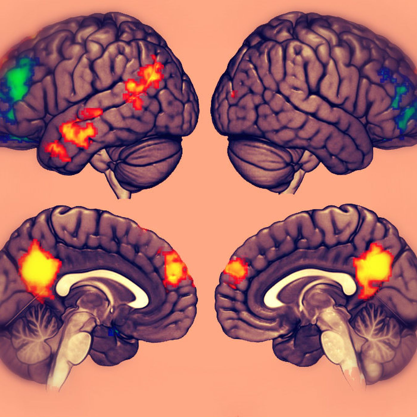 A new study sheds. Psychology clipart science brain