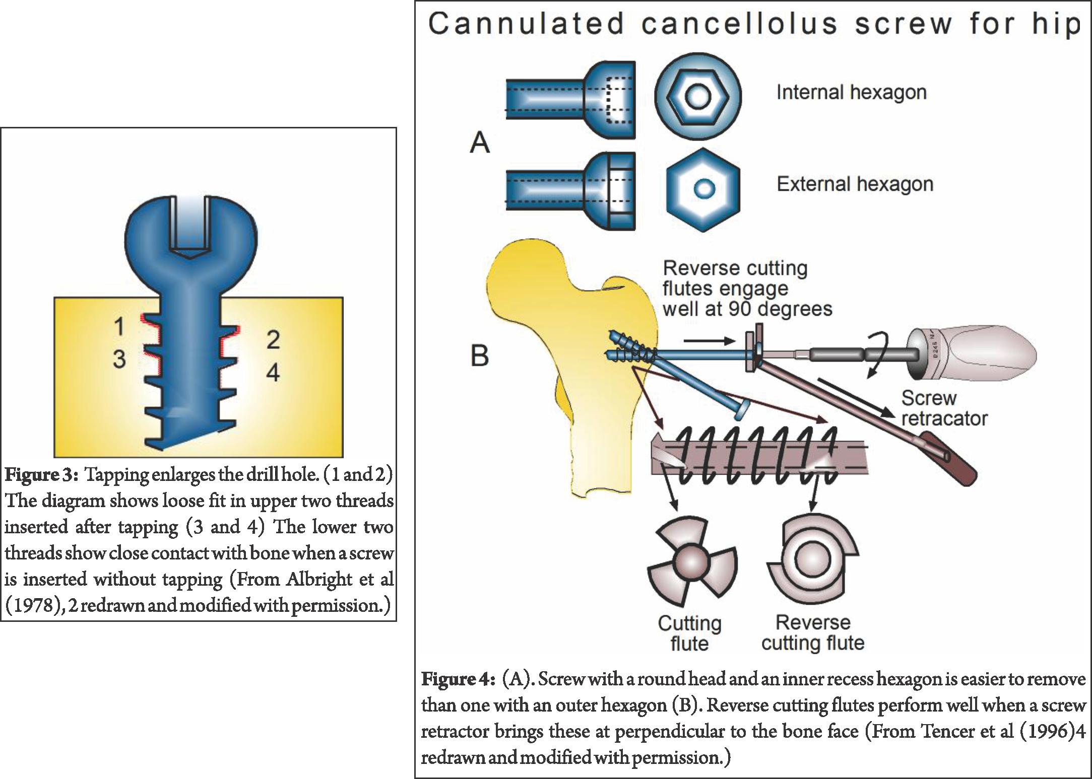 Biomechanics archives trauma international. Screwdriver clipart diagram