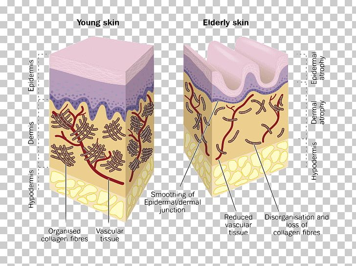 Skin clipart dermis. Collagen wrinkle hyaluronic acid