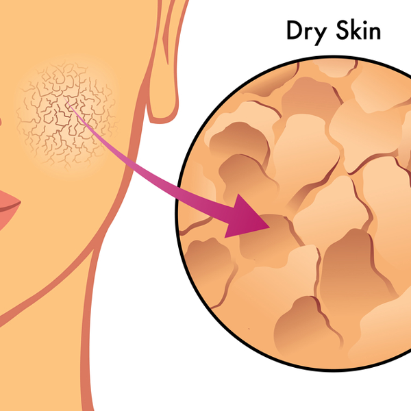 Skin clipart dry skin.  ways to protect