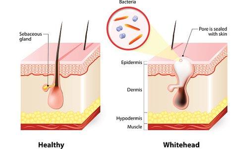 And whiteheads premium clipartlogo. Skin clipart healthy skin