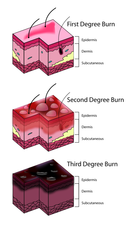 Lessons tes teach pxburndegreediagramsvgpng. Skin clipart integumentary system