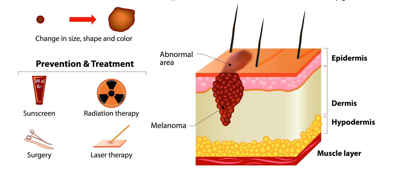 Treating actinic keratosis and. Skin clipart melanoma