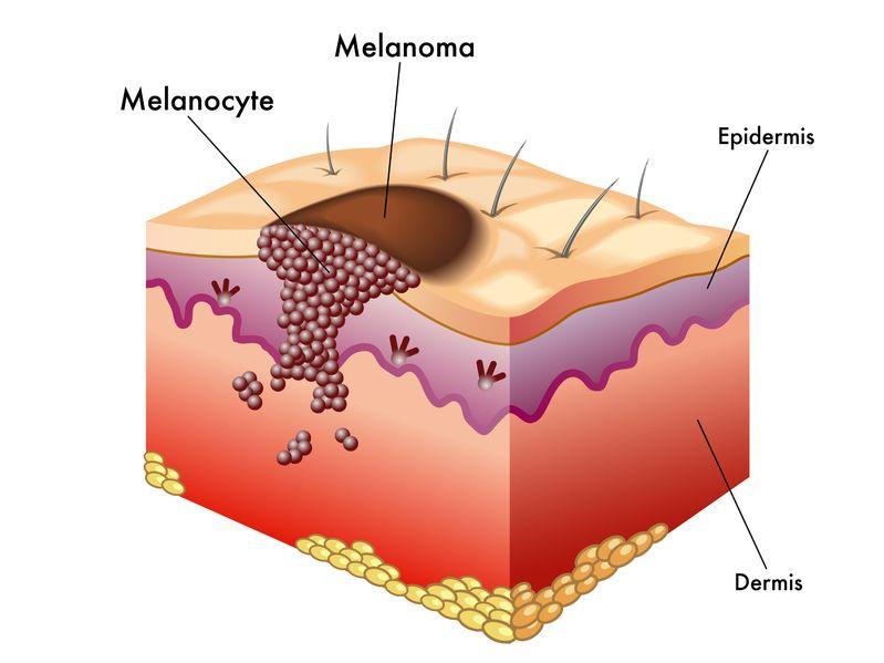 Skin clipart melanoma. New technology for detecting