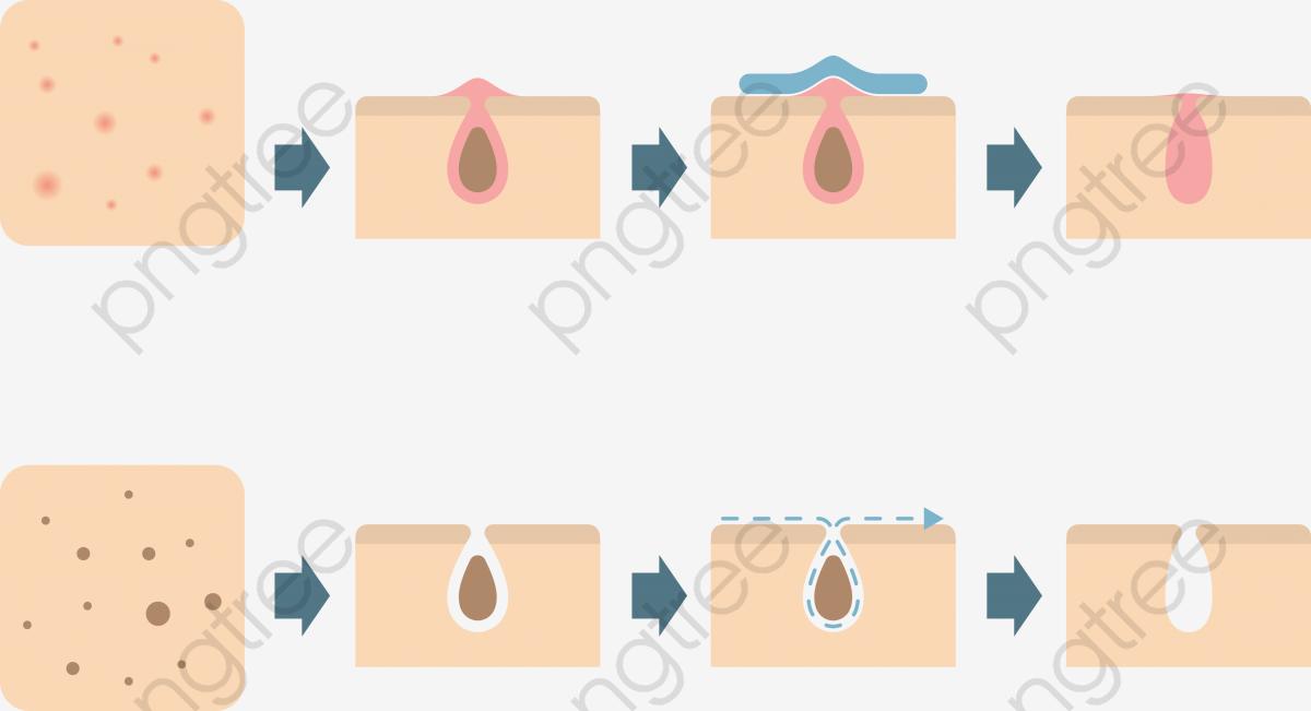 Transparent png format image. Skin clipart pore