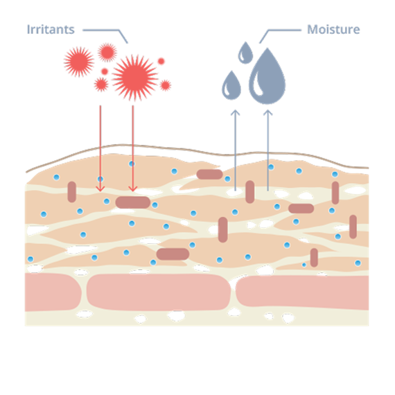 Skin clipart skin diagram. How to treat dry