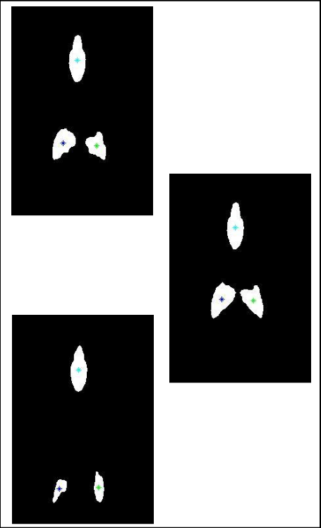 Segmented frames in binary. Skin clipart skin diagram