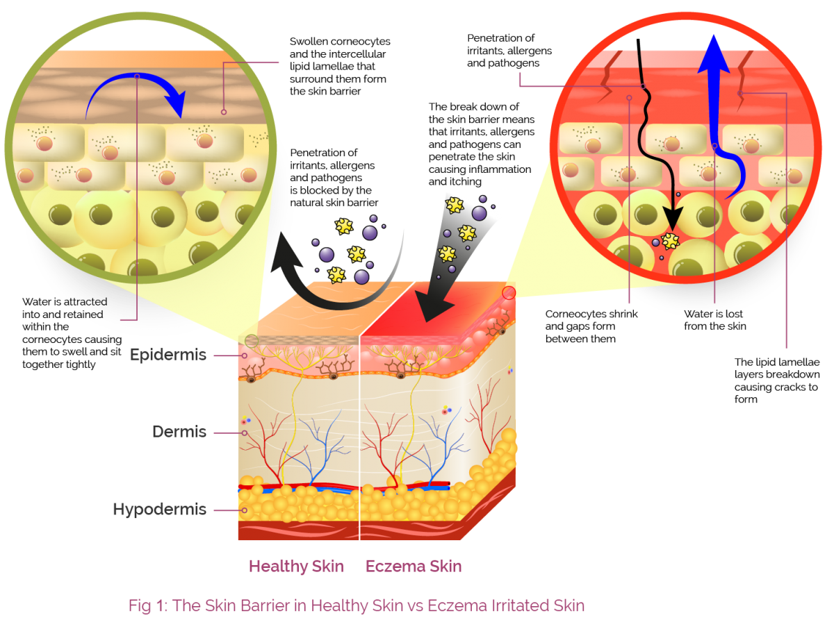 Skin clipart skin diagram. Aproderm the barrier our