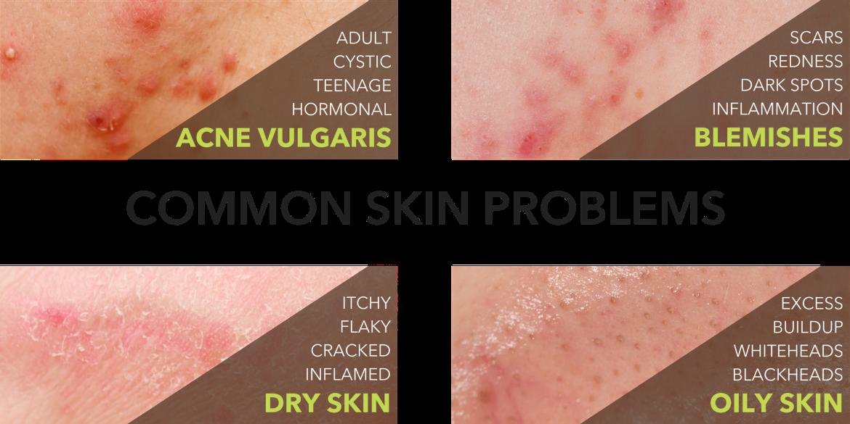 reason why acne. Skin clipart skin problem