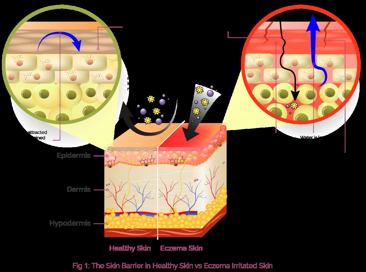 Skin clipart skin structure. Layers of romeo landinez