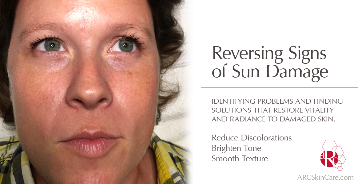 Product information advanced rejuvenating. Skin clipart sun damage