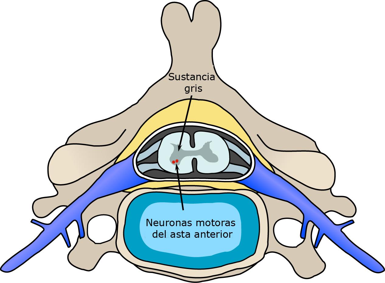 File polio spinal diagram. Spine clipart anterior