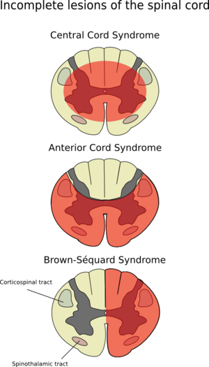 Spine clipart anterior. Spinal artery syndrome wikipedia