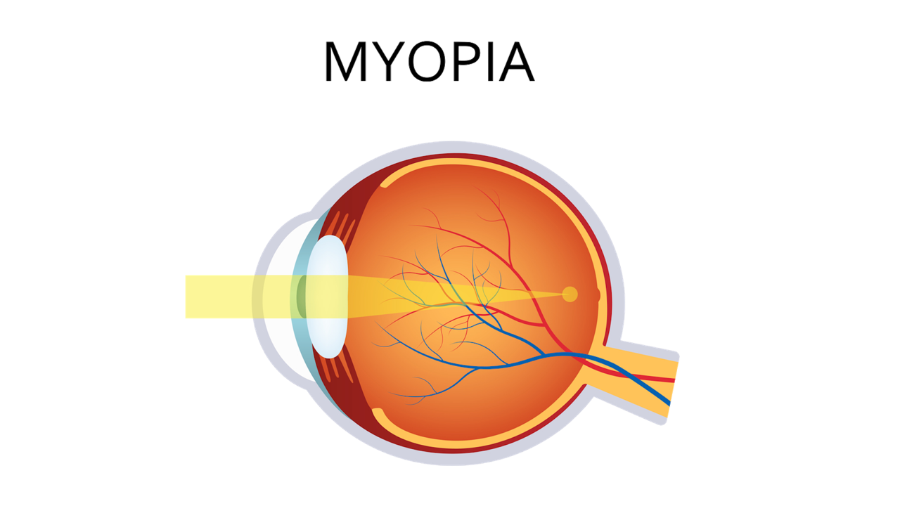 Myopia nearsighted correction with. Vision clipart vision loss