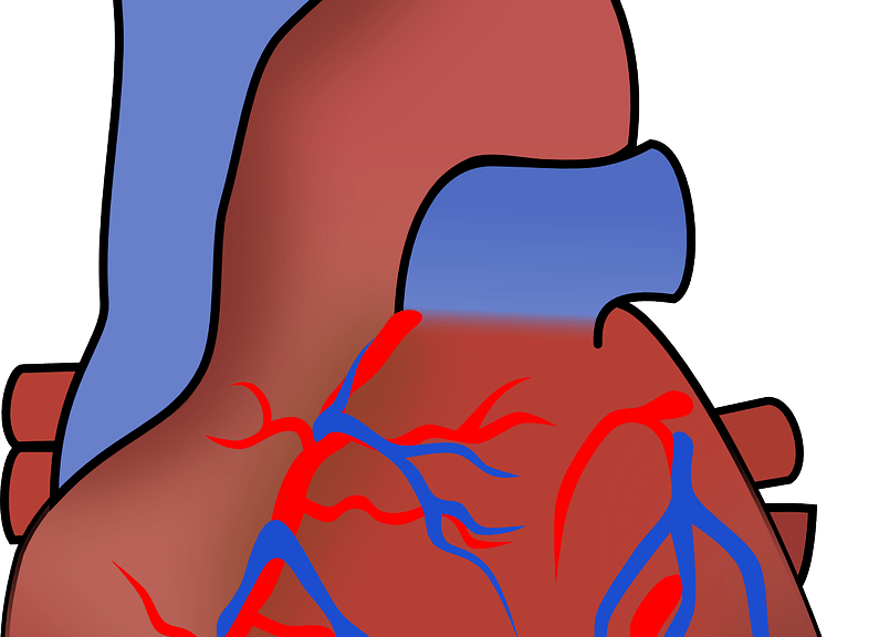 Weight clipart dyslipidemia. Dealing with