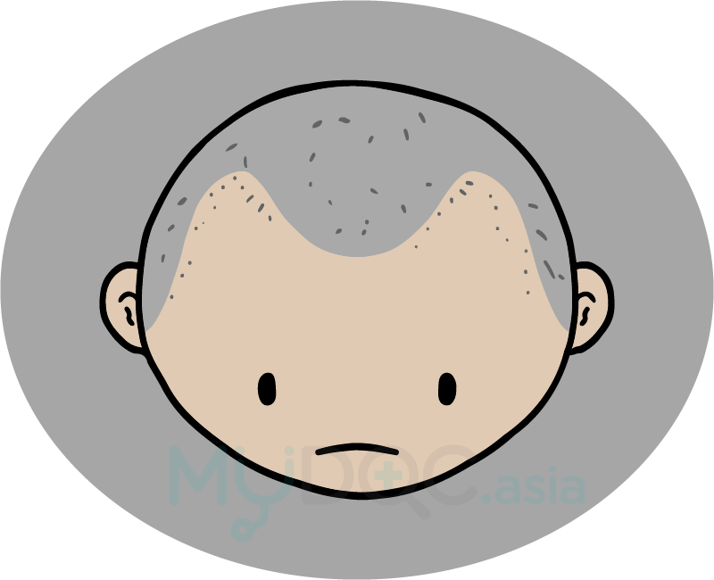 Worry clipart hair loss. Will i be bald