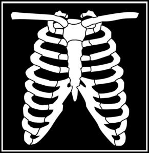 Black white clip art. Xray clipart