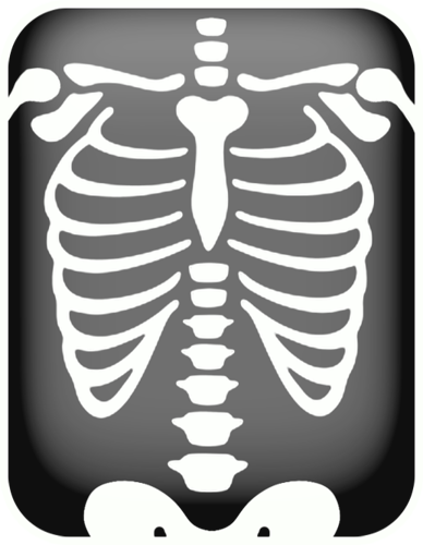 Xray clipart. Chest x ray kit