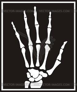 Xray clipart. Hand x ray