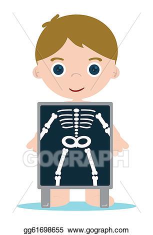 Eps illustration x ray. Bone clipart kid
