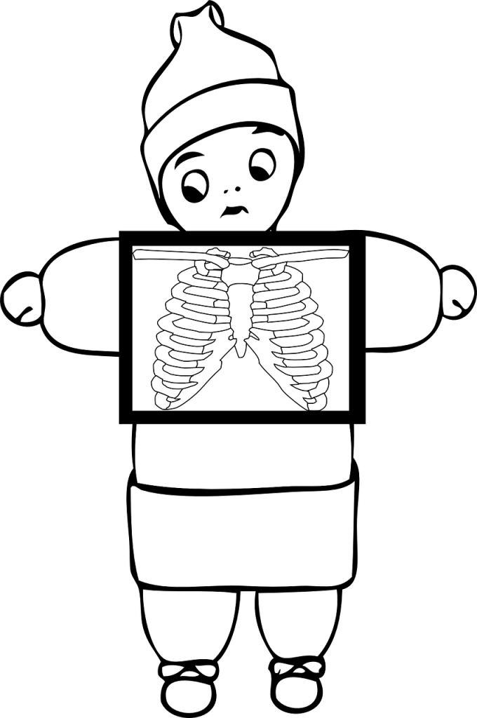 Amazon containers now can. Xray clipart black and white