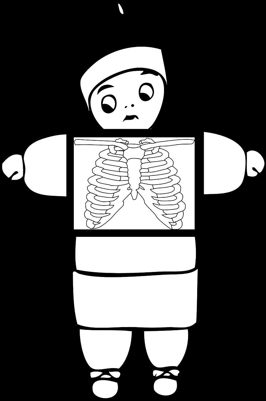 Xray clipart medical. X ray health bone