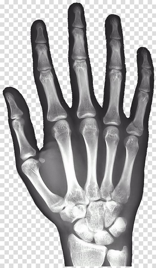 Xray clipart radiography. X ray of hand