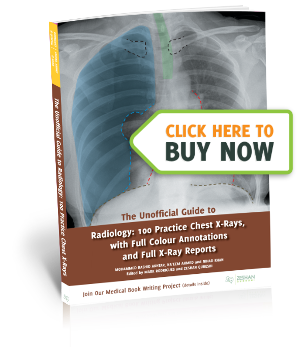 The unofficial guide to. Xray clipart radiology
