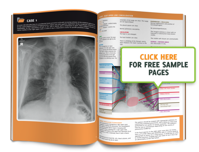 Xray clipart radiology. The unofficial guide to