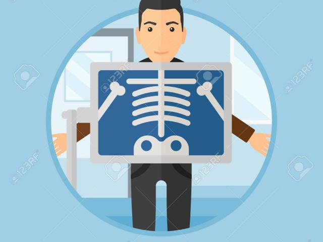 Free x ray download. Xray clipart room
