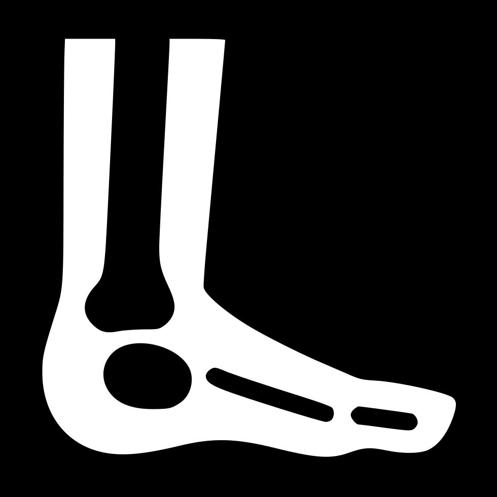 Foot x ray svg. Xray clipart room