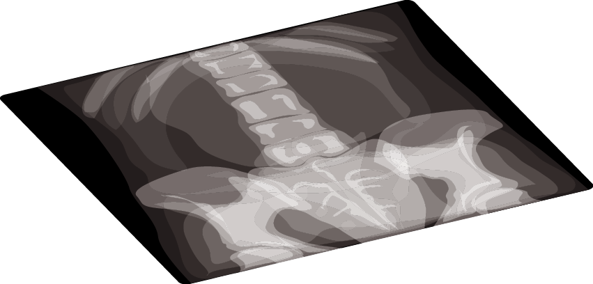 Medical equipment archives page. Xray clipart thorax