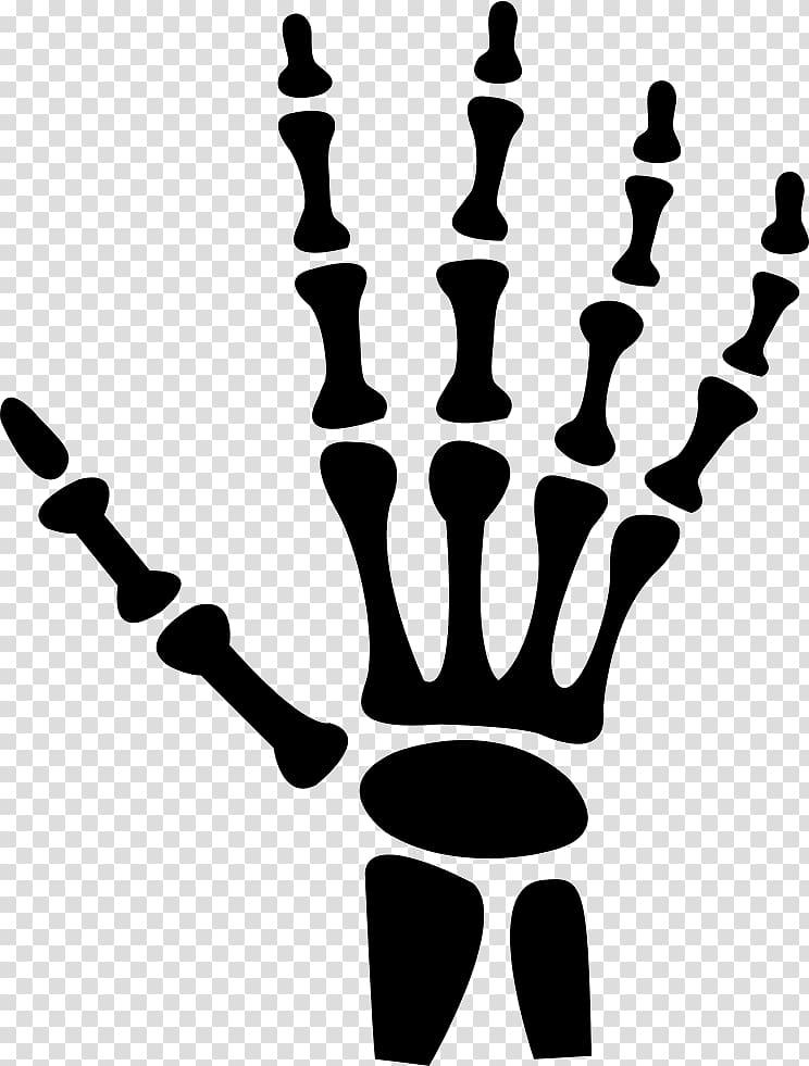 Xray clipart xray body. Hand x ray radiology