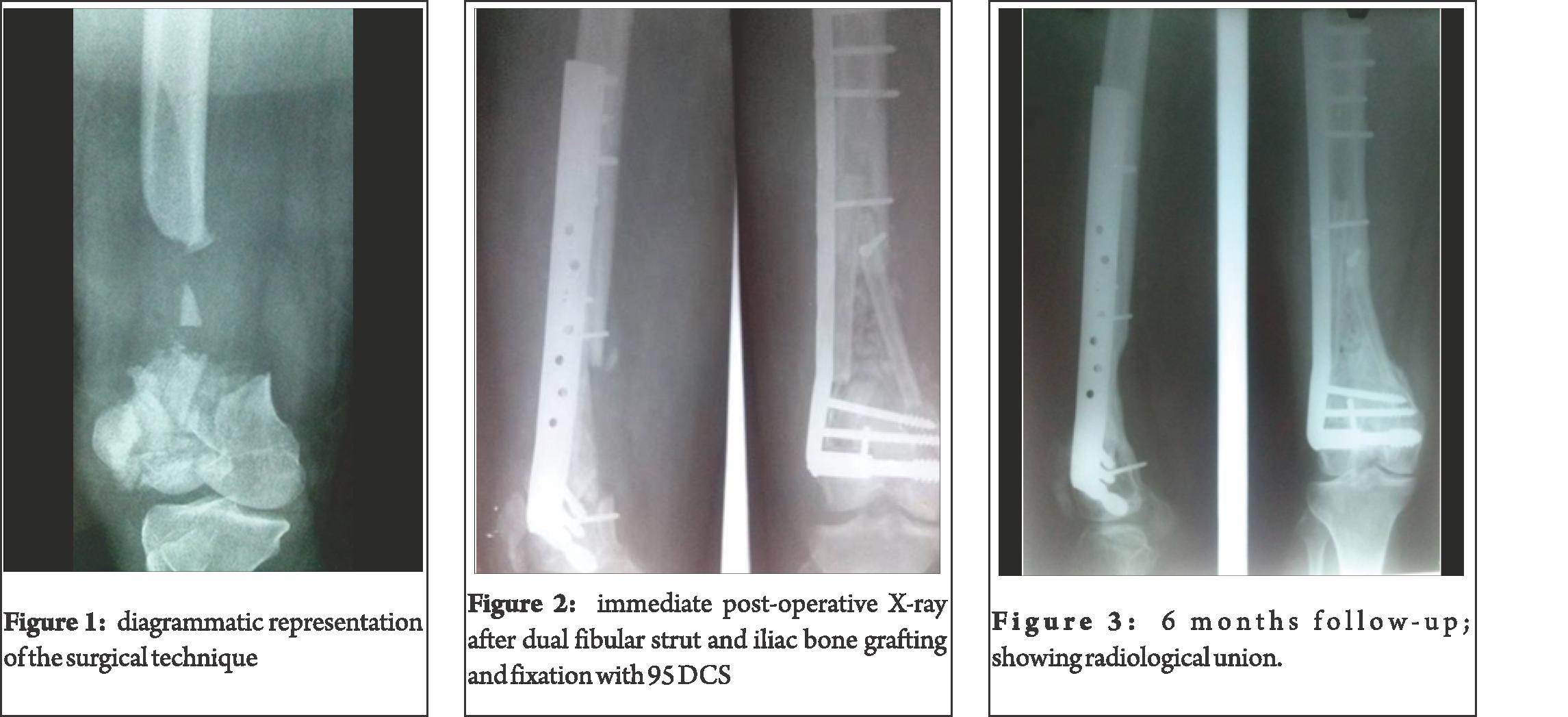 Blog page of trauma. Xray clipart xray broken bone