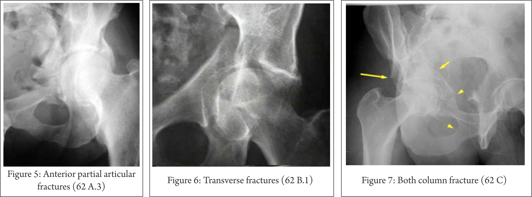 Xray clipart xray broken bone. Volume issue may aug