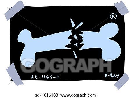Clip art doodle x. Xray clipart xray broken bone