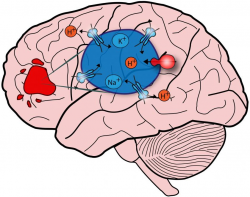 Autism Meets Glioblastoma: Novel Strategy For Treating Brain Cancer ...