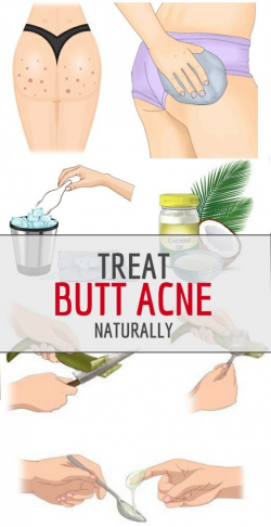 10 Ways to Treat Butt Acne Naturally at Home | Facial, Pimple and ...