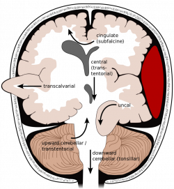 Tiny Tips: ICH for ICH - Brain Herniation - CanadiEM